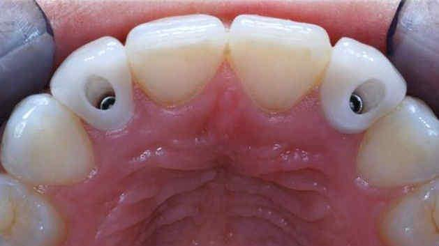 implantes dentales financiacion