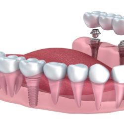 olvidate de tu dentadura postiza