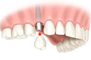 Implantes Dentales clinica dental hijar y la herradura