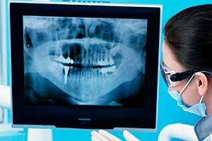 Cirugias dentales