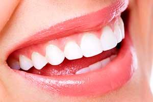 aumento de labios clinica dental hijar y la herradura