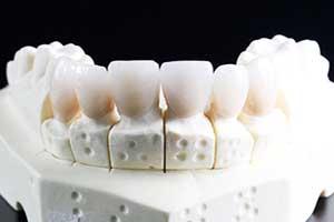 empastes y obturacion dental clinica dental hijar y la herradura