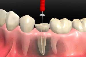 endodoncia para matar el nervio clinica dental hijar y la herradura