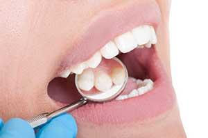 microbiologia periodontal clinica dental hijar y la herradura