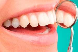 Microcirugia periodontal